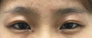 瞼 脂肪 取り 意味 ない